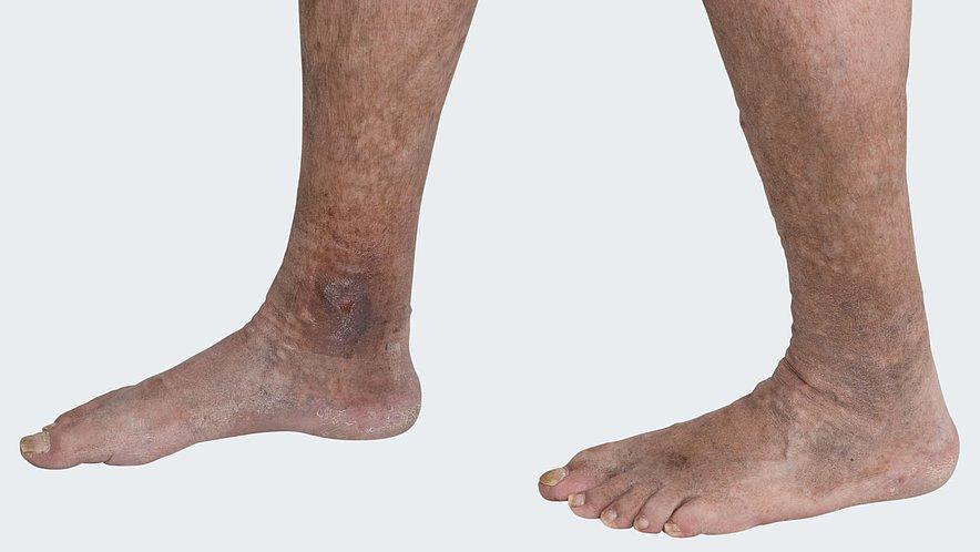 Indication leg ulcer