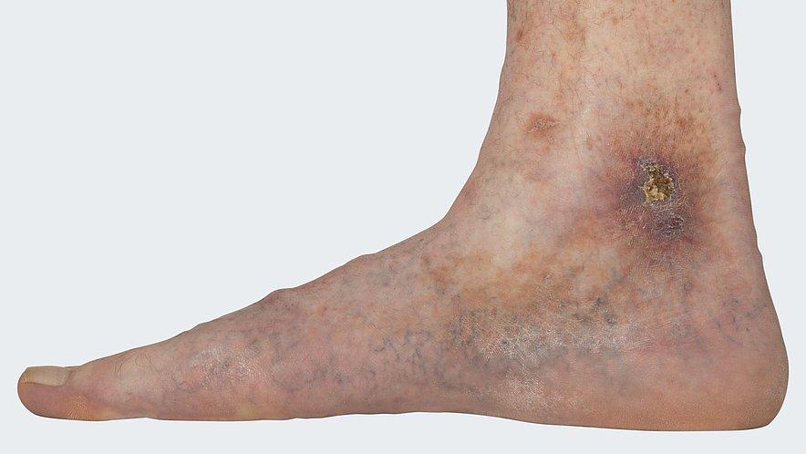 C 6: Varicosis (= varicose vein disorder) with florid ulcus cruris venosum (= leg ulcer, venous-related lower leg ulcer)