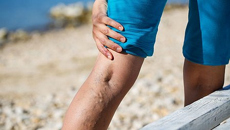 Varicose veins (varices)