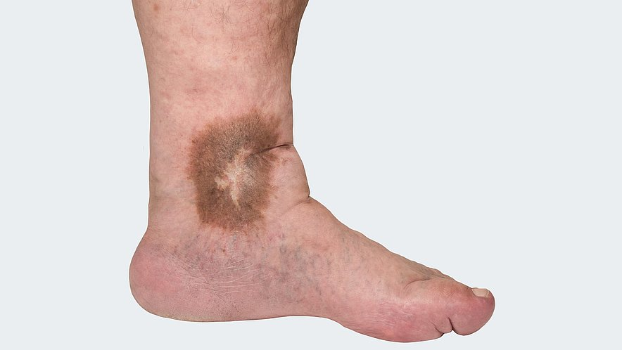 C 4: Varicosis (= varicose vein disorder) with trophic skin changes
