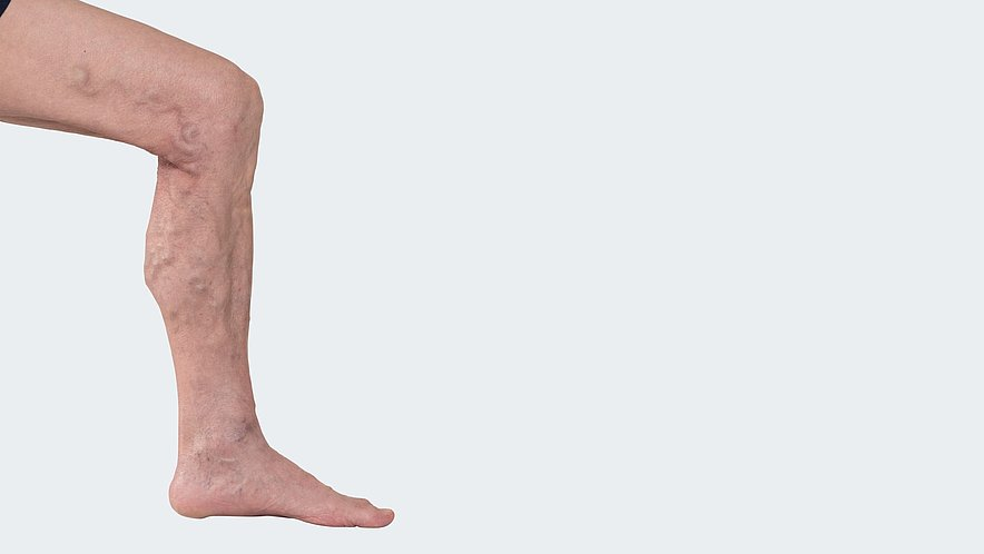 C 2: Varicosis (= varicose vein disorder) without clinical indication of a chronic venous insufficiency