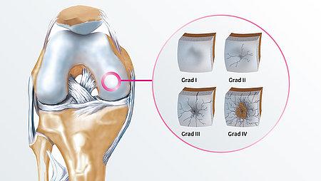 Was ist Gonarthrose und wie entsteht sie?