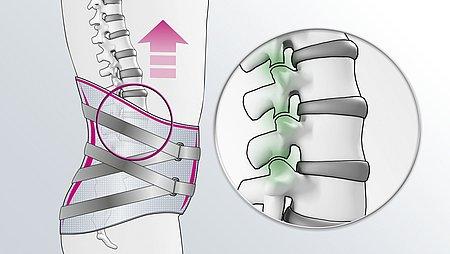 Entlastung der Facettengelenke durch Lumbamed facet Rückenorthese - Lumbamed facet Rückenorthese Aufrichtung