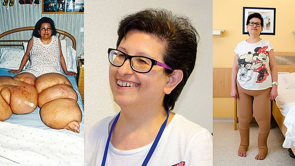 Elephantiasis patient Maria Bordonado