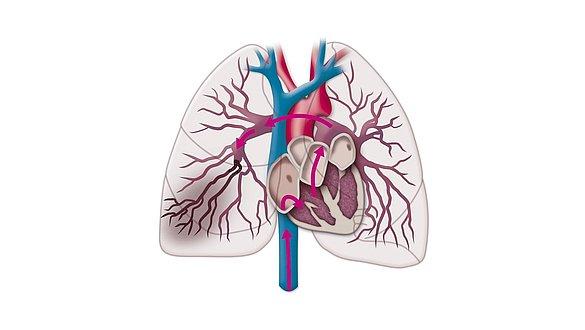 Lungenembolie - Lungenembolie
