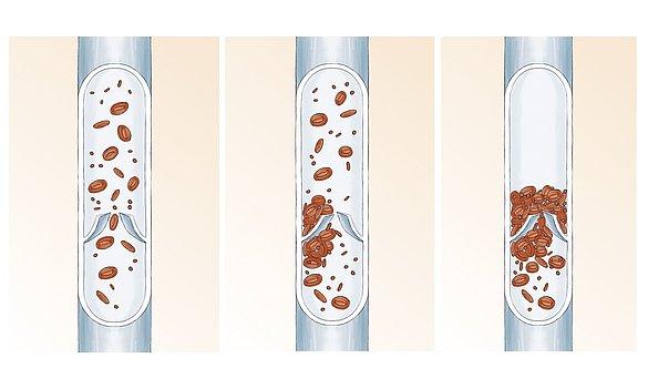 Tiefe Beinvenenthrombose: Diagnose & Therapie | medi