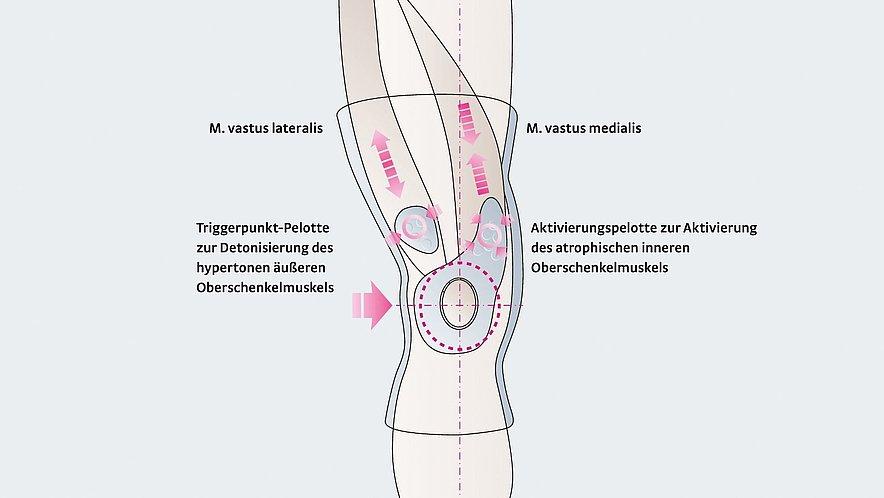 Wirkungsweise der Kniebandage Genumedi PT - Genumedi PT Wirkungsweise