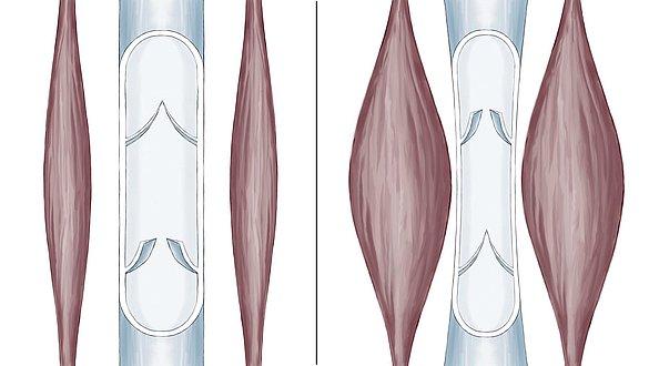Wadenmuskelpumpe - Wadenmuskelpumpe
