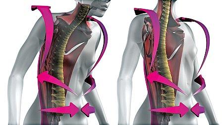 Rückenorthesen von medi