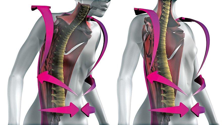 Wirbelsäulenaufrichtende Orthese Spinomed von medi