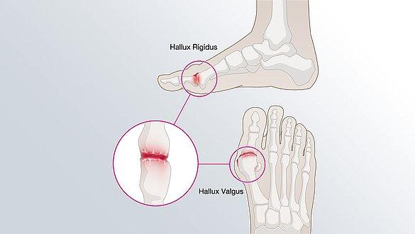 Hallux Valgus: Wenn die große Zehe schief steht und schmerzt - Hallux Valgus: Wenn die große Zehe schief steht und schmerzt