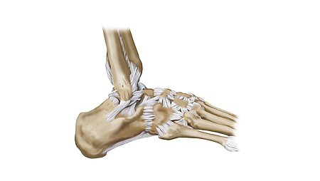 Causes – how do sprains develop? - Causes – how do sprains develop?