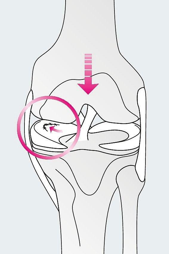 Meniskus-Verletzung - Meniskus-Verletzung