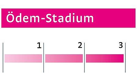 Ödeme Stadium III - Ödeme Stadium III