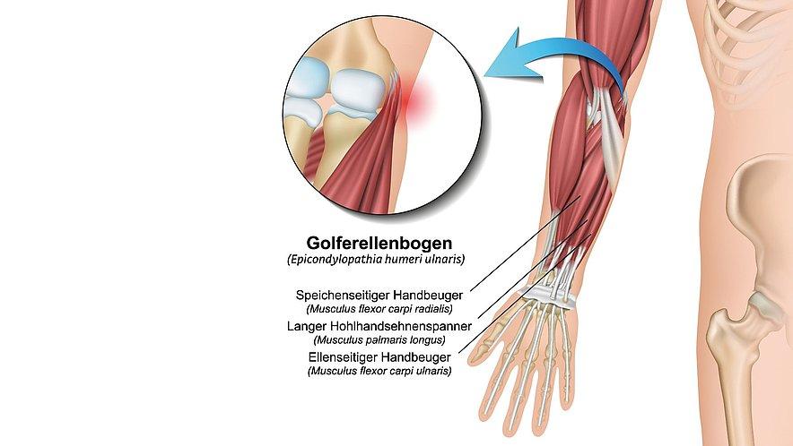 Golfer-Ellenbogen - Golfer-Ellenbogen