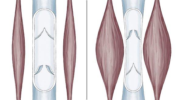 Calf muscle pump - Calf muscle pump