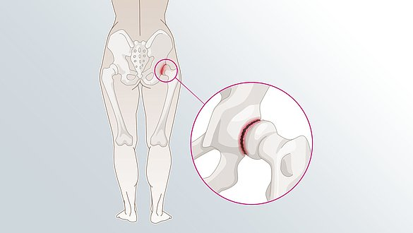 Joint pain - Joint pain