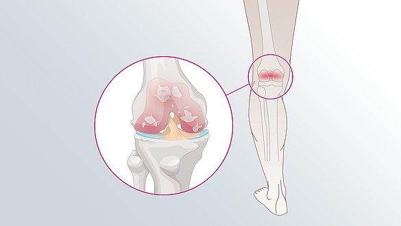 Osteoarthritis of the knee - Osteoarthritis of the knee