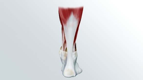 Achilles tendon rupture - Achilles tendon rupture