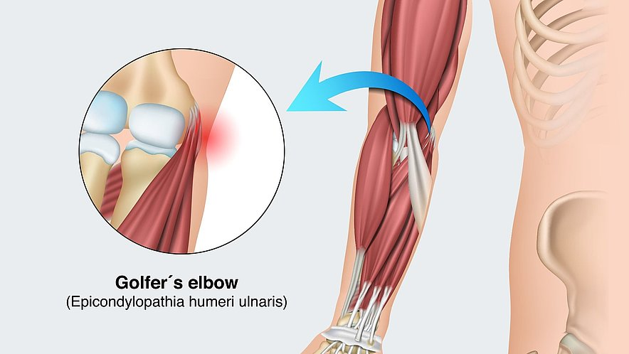 Golfer's elbow (pain on the inside) - Golfer's elbow (pain on the inside)