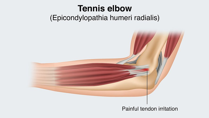 Tennis elbow (pain on the outside) - Tennis elbow (pain on the outside)