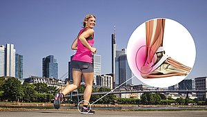 A pain syndrome of the Achilles tendon
