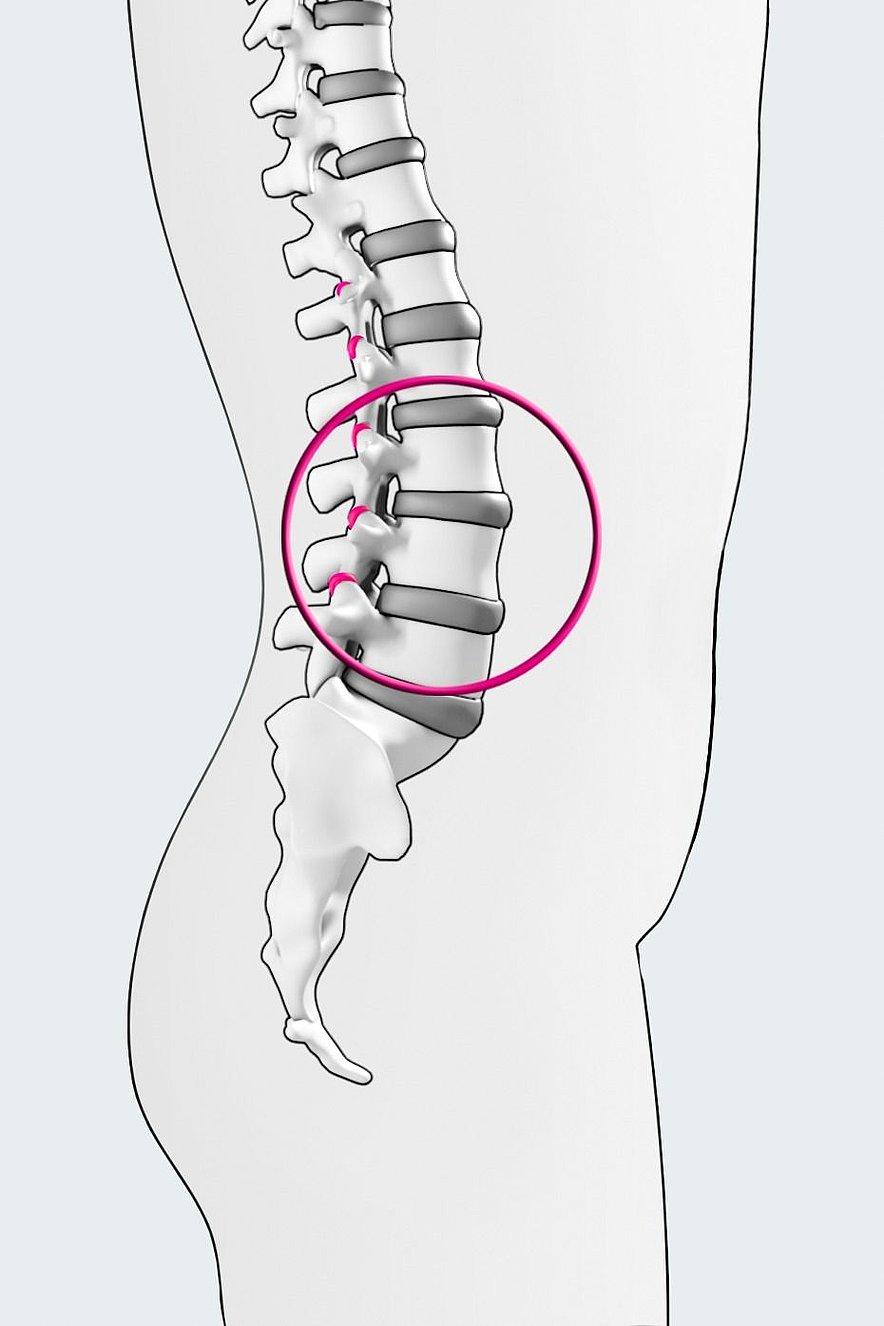 Lumbar spine - Lumbar spine