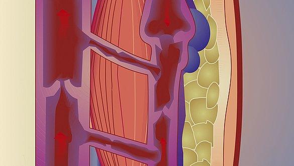 Varicose veins illustration -