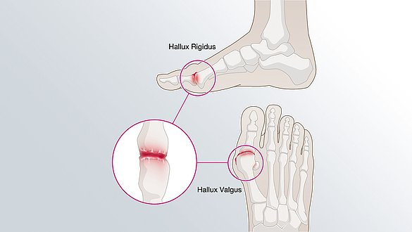 Hallux valgus: when the big toe is crooked and painful - Hallux valgus: when the big toe is crooked and painful