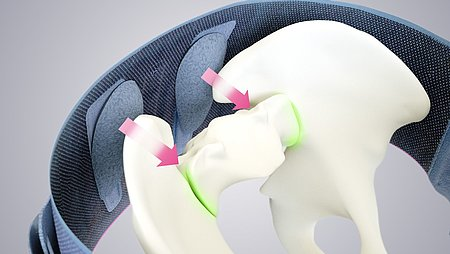 Lumbamed sacro, an orthosis for the stabilisation and stress relief of the pelvis as well as the sacroiliac joints. - Lumbamed sacro, an orthosis for the stabilisation and stress relief of the pelvis as well as the sacroiliac joints.