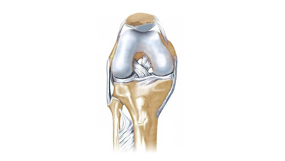 Cruciate ligament rupture - Cruciate ligament rupture