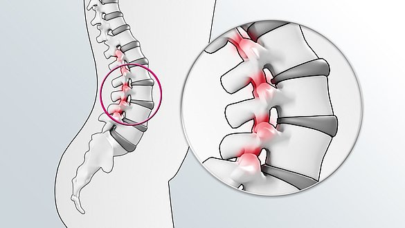 Joints between the vertebrae, facet joints