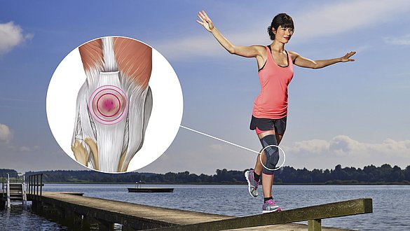 Patellofemoral pain syndrome - Patellofemoral pain syndrome