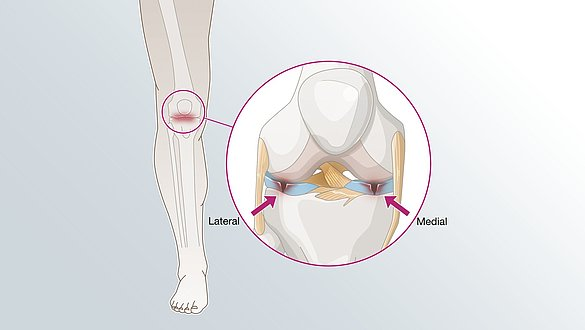 Meniscus injury