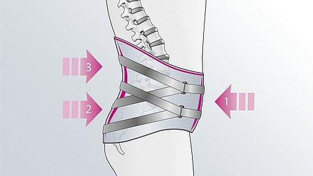 3-Punkt-Wirkprinzip der Lumbamed facet Rückenorthese - Lumbamed facet Rückenorthese Wirkprinzip