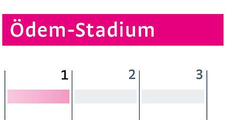 Ödeme Stadium I - Ödeme Stadium I